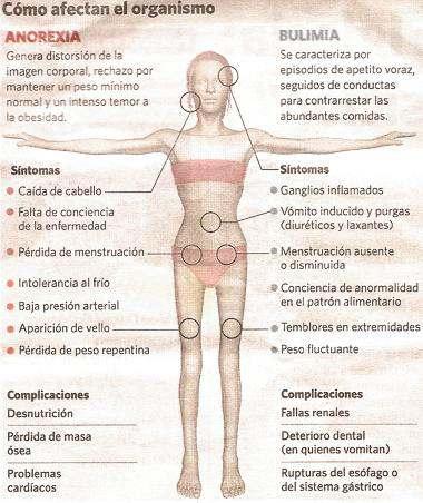 sintomas de bulimia