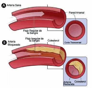 esquema de una arteria con colesterol