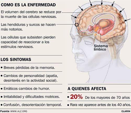 Resultado de imagen para mal de alzheimer enfermedad