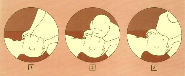 tecnica primeros auxilios boca - nariz