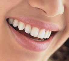 Control Bucal encias enfermas y dientes Cancer Oral Higiene Bucal