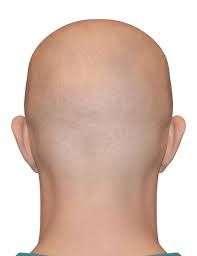 cabeza calvo