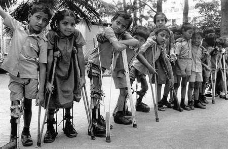 poliomielitis epidemia