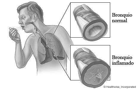enfermedad de los bronquios