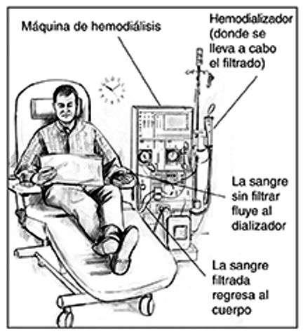 Máquina de Diálisis riñon artificial