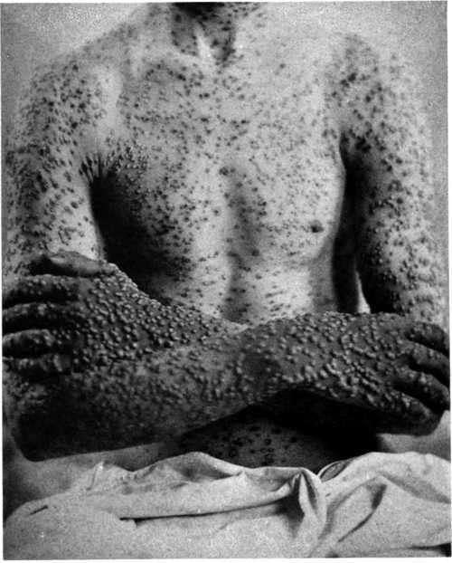 tifus piel afectada