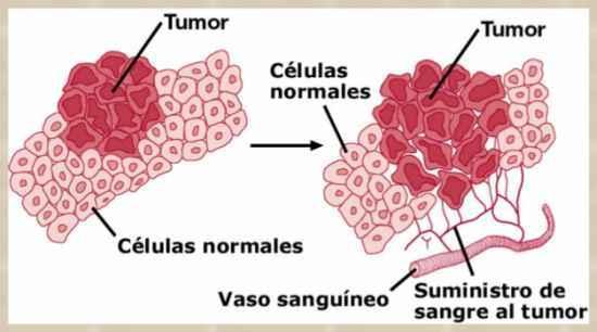 tumor maligno