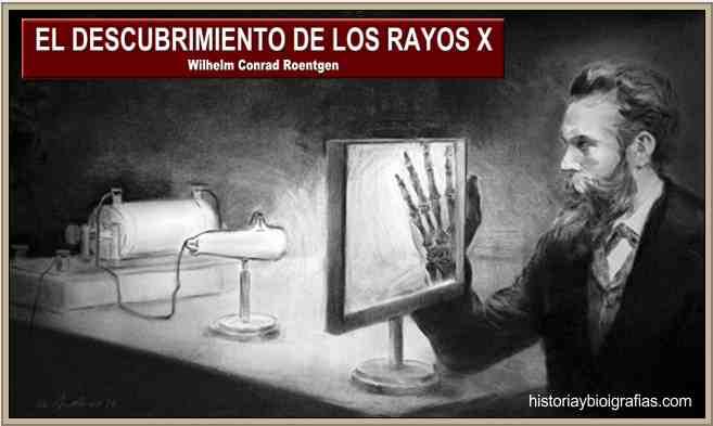 roentgen rayos x