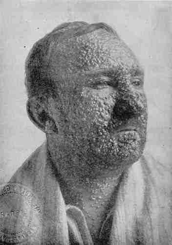 viruela rostro afectado